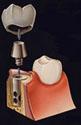 ヒールオゾン治療東京/歯を削らない虫歯治療インプラント予防