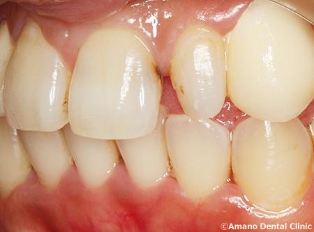 変色しにくいプラスチックの詰め物コンポジットレジン治療前ib