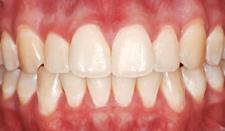 歯の白い斑点(ホワイトスポット)治療後