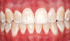 歯の白い斑点(ホワイトスポット)治療前)