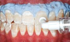 歯の白い斑点(ホワイトスポット)治療中