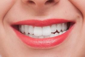 白いきれいな歯イメージ