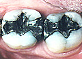 歯の再石灰化と強化/MIペーストIn