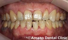 安定した良い顎の位置/中心位治療後