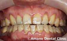 安定した良い顎の位置/中心位治療前