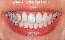 歯のマニキュア、ホワイトコート 治療前