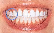 歯のマニキュア、ホワイトコート 治療後