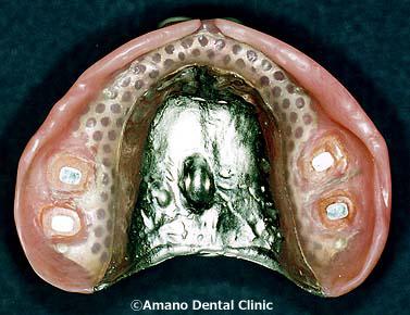 Denture magnet