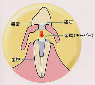 マグネット入れ歯とは