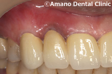 歯茎が黒い差し歯の治療後
