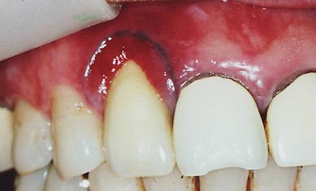 審美歯科治療例写真