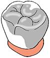歯を削らない治療図4