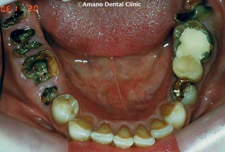 歯科恐怖症の治療前42歳女性