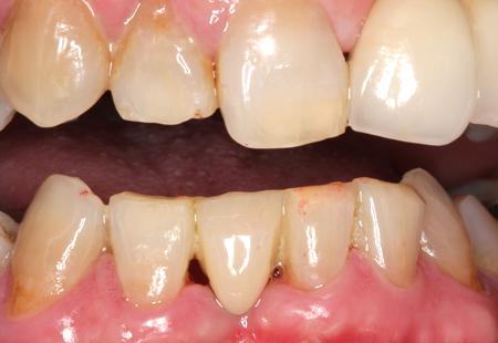 歯を削らないブリッジ治療後