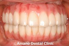 歯科セカンドオピニオン治療後1