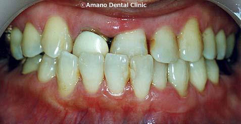 悪い噛み合わせによる歯の揺れ(咬合性外傷)反対咬合