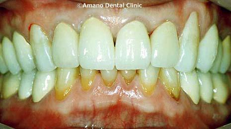 噛み合わせ治療歯槽膿漏治療後