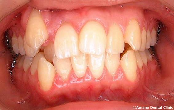 悪い噛み合わせによる歯の揺れ(咬合性外傷)八重歯