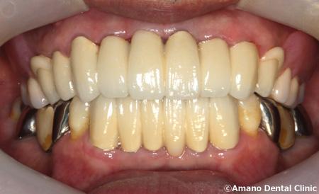 歯槽膿漏 治療後