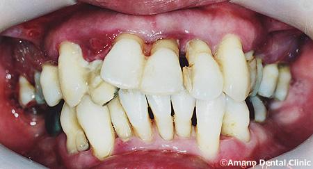 歯槽膿漏,治療例写真