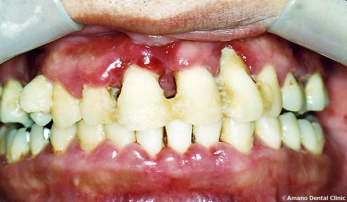 歯槽膿漏の治療前38歳男性