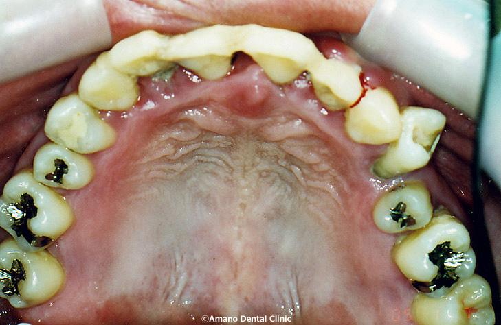 歯科セカンドオピニオン治療前3
