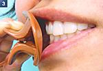 パタカラ/口の筋力増強用品装着3