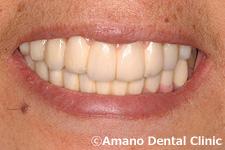 歯槽膿漏の治療後