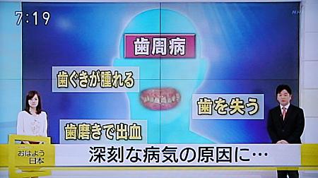 歯周病が心筋梗塞,糖尿病の原因に1
