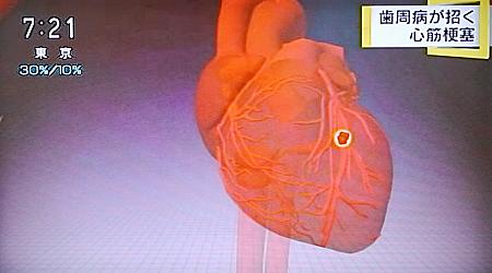 歯周病が心筋梗塞,糖尿病の原因に11