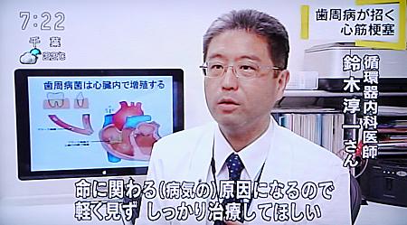 歯周病が心筋梗塞,糖尿病の原因に