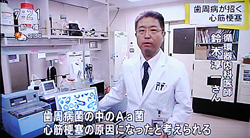 歯周病が心筋梗塞,糖尿病の原因に4