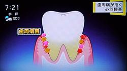 歯周病が心筋梗塞,糖尿病の原因に6