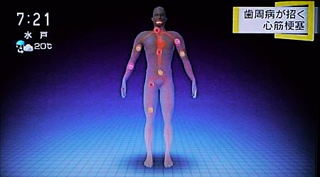 歯周病が心筋梗塞,糖尿病の原因に7