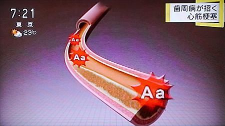 歯周病が心筋梗塞,糖尿病の原因に9