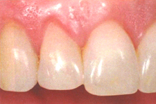 下がった歯茎を戻す治療/歯茎を上げる治療後1