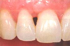 下がった歯茎を戻す治療/歯茎を上げる治療前1