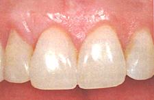 下がった歯茎を戻す治療/歯茎を上げる治療後2