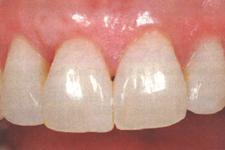 下がった歯茎を戻す治療/歯茎を上げる治療前2