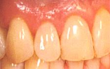下がった歯茎を戻す治療/歯茎を上げる治療後3