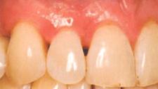 下がった歯茎を戻す治療/歯茎を上げる治療前3