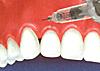下がった歯茎を戻す治療/歯茎を上げる治療図2