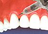 下がった歯茎を戻す治療/歯茎を上げる治療図3