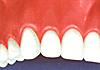 下がった歯茎を戻す治療/歯茎を上げる治療図4