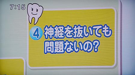 歯の根の治療,根管治療1