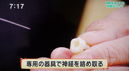 歯の根の治療,根管治療3