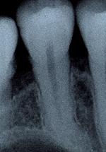 歯の根管断面図2