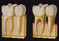 歯槽膿漏,歯周病と糖尿病歯槽膿漏