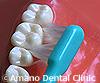 超極細毛歯ブラシ販売購入通販使用法