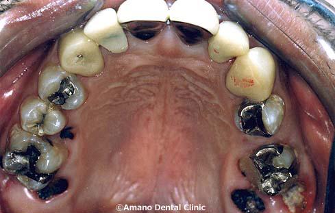 口臭の治療前38歳女性